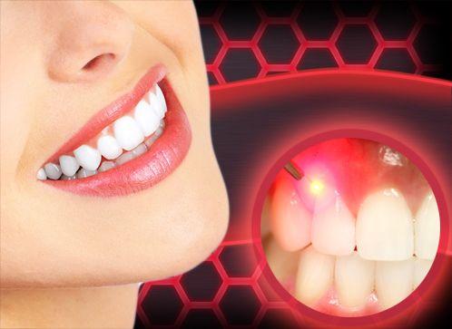 Soft laser és APDT (antimikrobiális) kezelés